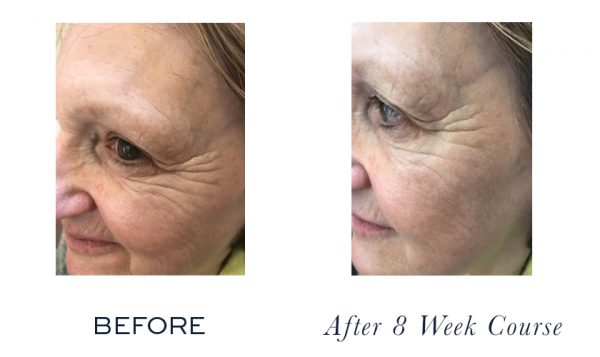 Firm-a-Lift Course ~ dramatically lifted and much firmer