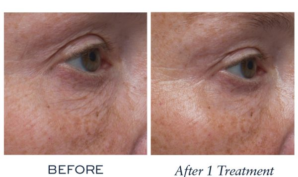 Hydrated skin with reduced fine lines and wrinkles
