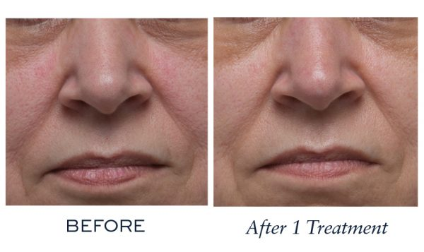 Visibly improved the appearance of age spots and hyper-pigmentation on skin