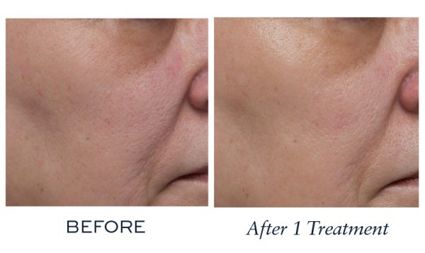 Significantly increased skin smoothness and improved skin tone